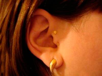 Серьга или игла в ухо для похудения: отзывы, плюсы, минусы